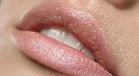 tips to clear fordyce spots and white spots on lips