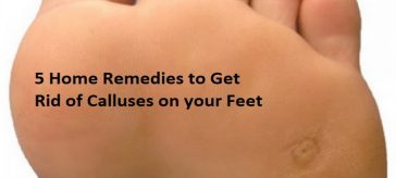 calluses on feet picture