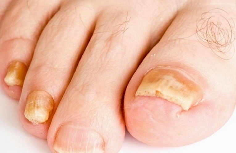 How to Get Rid of Toenail Fungus Fast with 5 Natural Cures ...