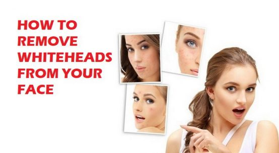 get rid of whiteheads on face and nose