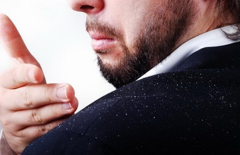 man with dandruff problem