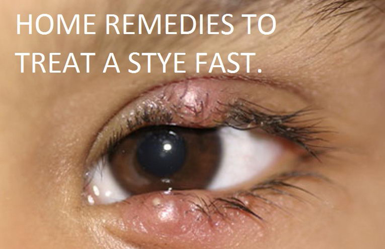 how to get rid of a stye fast