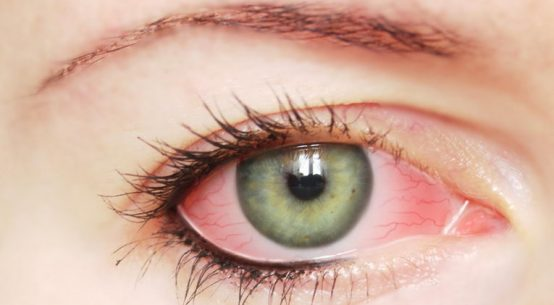 pink eye infection