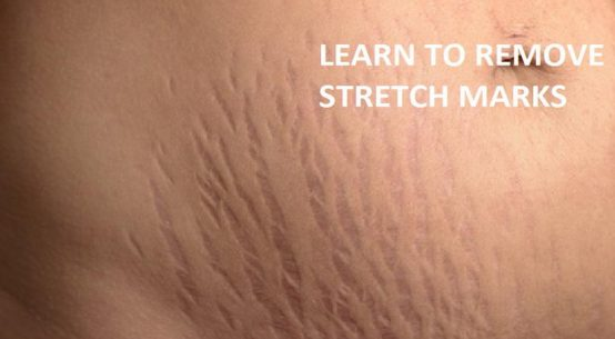 stretch marks stripes on skin tummy